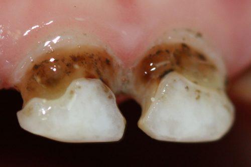 серебрение зубов у детей2