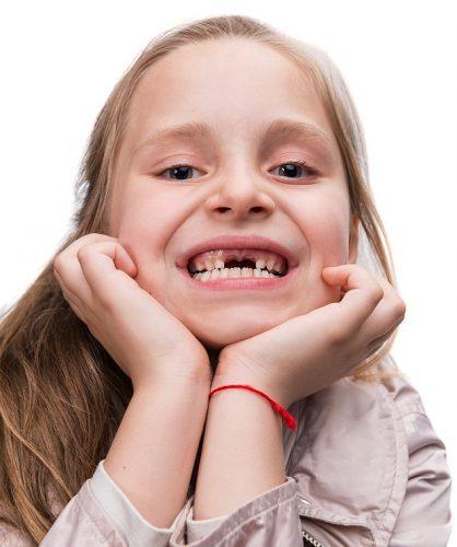 смена молочных зубов2