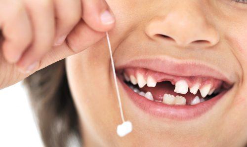 смена молочных зубов