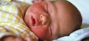 сыпь на лице у грудного ребенка