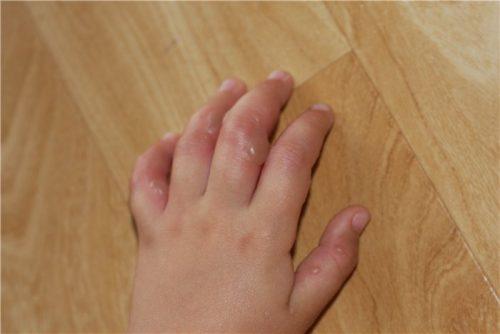 волдыри на руках у ребенка
