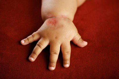 гнойники на руке у ребенка